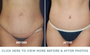 body contouring before after p1