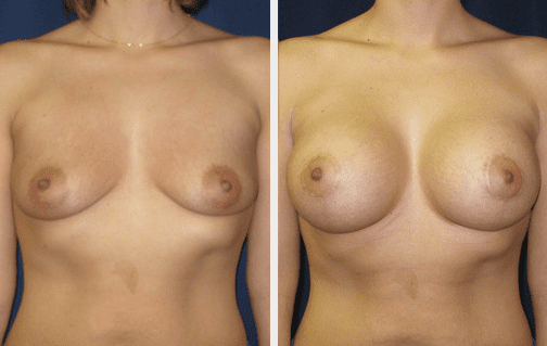 breast lift img