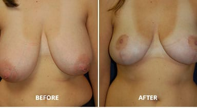 breast reduction before after p1