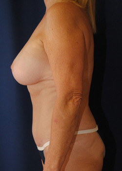 Breast Aug. w/Lift – Case 5