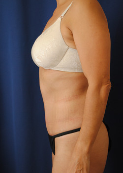 Tummy Tuck – Case 29