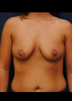 Breast Aug. W/ Lift – Case 12